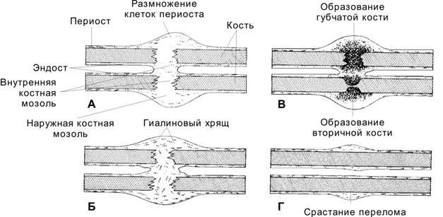 Почему образовывается костная мозоль после перелома и чем она опасна